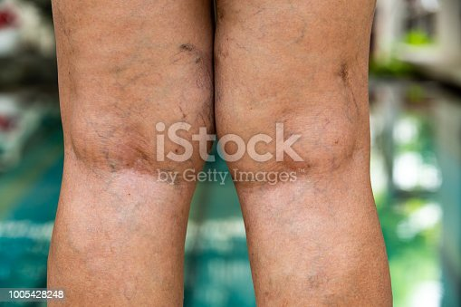 istock Varicose veins on the back of knees and legs in Senior women 1005428248