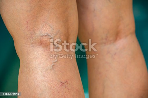 istock Varicose veins on the back of knees and legs in woman, Blue swimming pool background, Close up and macro shot, Selective focus, Asian Body skin part, Healthcare and Beauty concept 1164135236