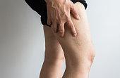 Varicose veins on the elderly womans legs,Close up