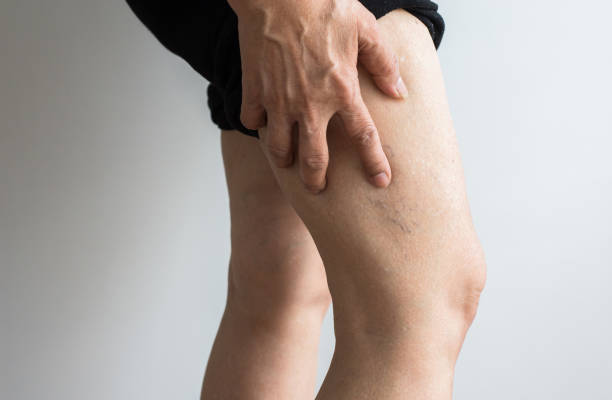 Varicose veins on the elderly womans legs,Close up Varicose veins on the elderly womans legs,Close up leg stock pictures, royalty-free photos & images