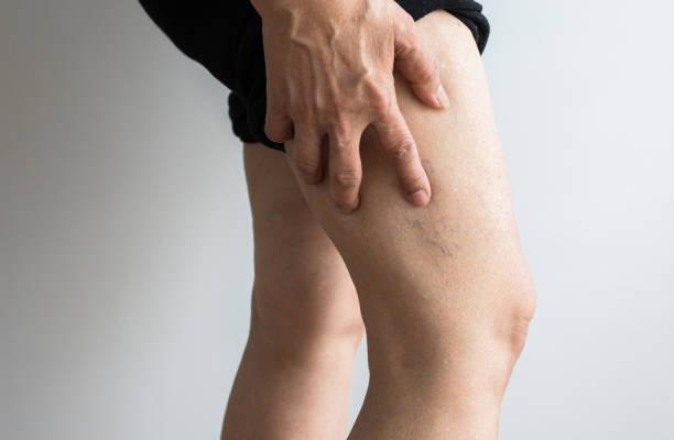spataderen op de benen van de bejaarde dames, close up - bloedvat stockfoto's en -beelden