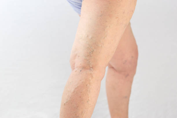 Varicose veins on the woman's foot over white background stock photo