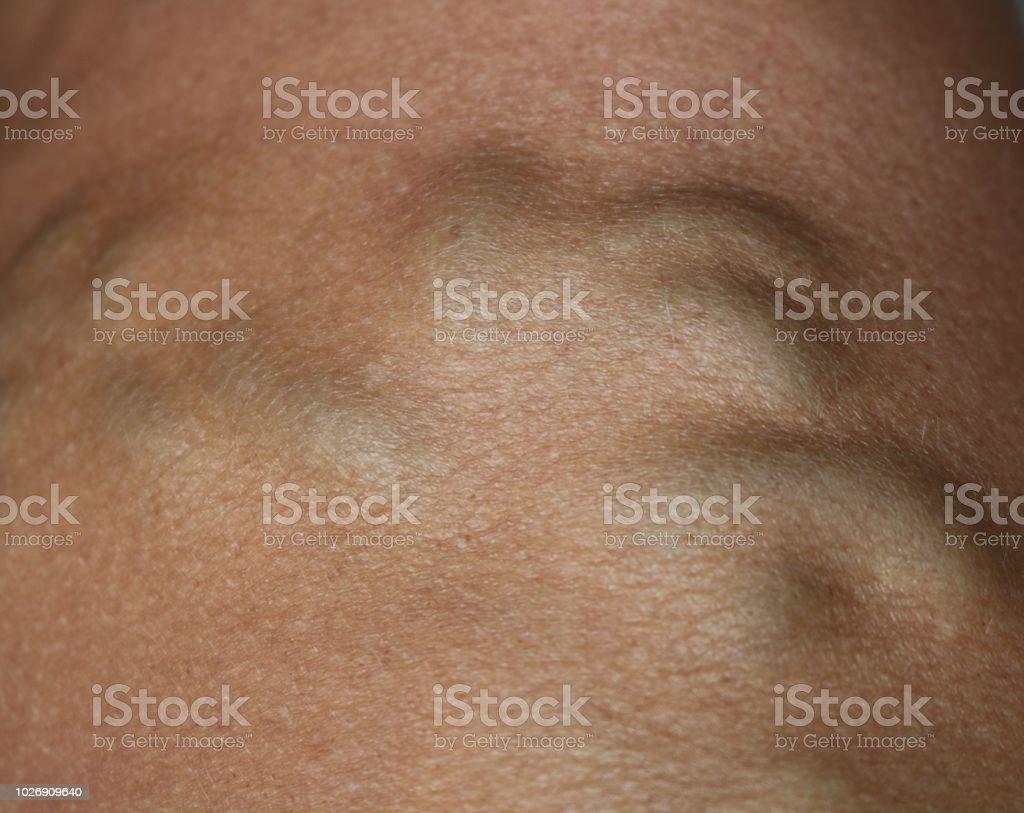 Venas varicosas - foto de stock