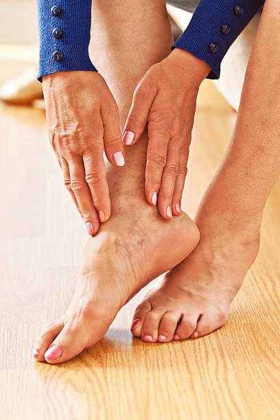 venas varicosas - enfermedades de los pies fotografías e imágenes de stock