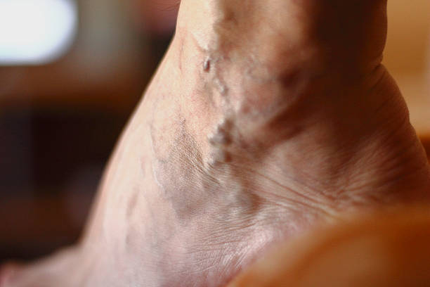 varicose veins - human limb stock pictures, royalty-free photos & images