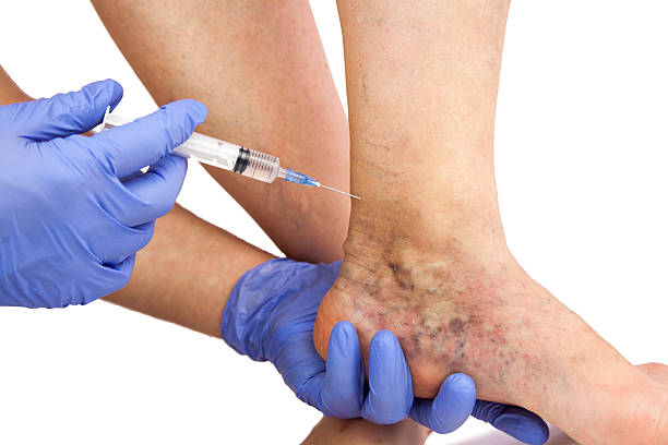 Varicose veins Varicose veins. Medical treatment. Isolated on white backgroundVaricose veins. Medical treatment. Isolated on white background human leg stock pictures, royalty-free photos & images