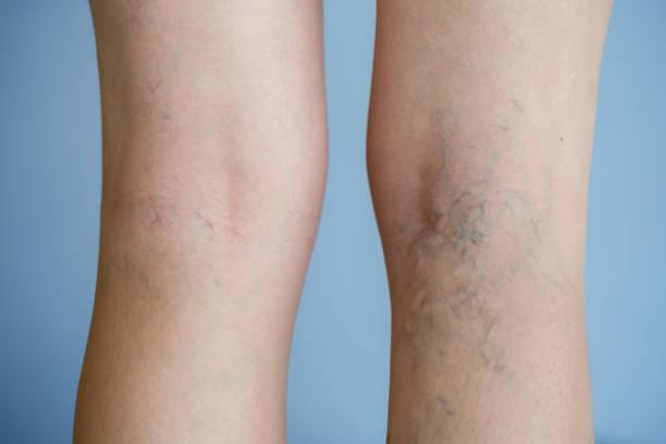 varices - enfermedades de los pies fotografías e imágenes de stock