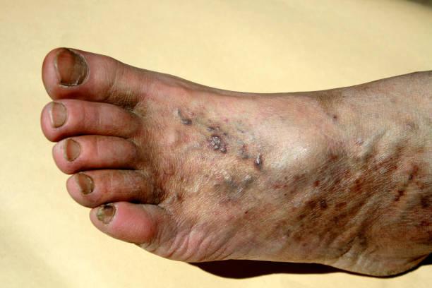 Varicose veins. Thrombosis. Foot. Extension of veins on the leg. stock photo