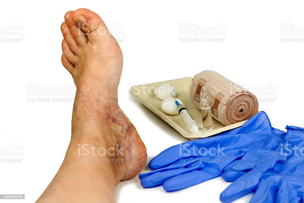 Varicose veins treatment stock photo