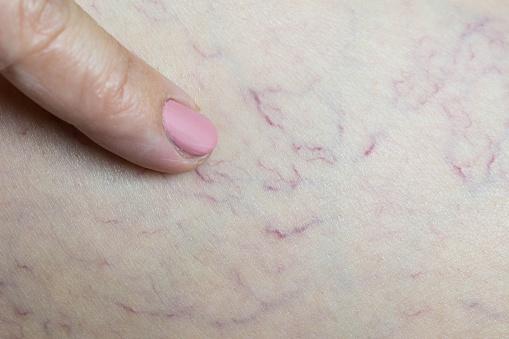 istock Varicose veins under woman skin 807364618