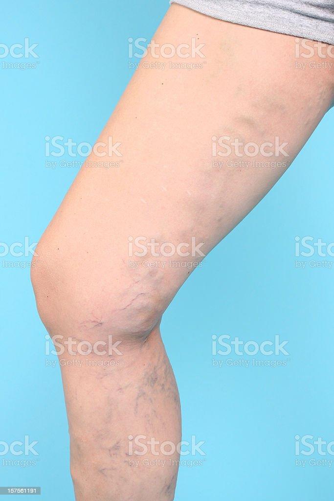 Varicose Vien on leg royalty-free stock photo