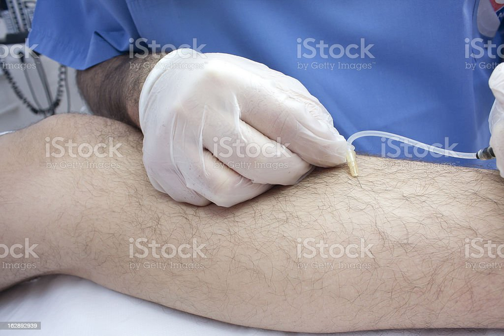 Varicosis treatment royalty-free stock photo