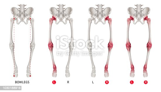 istock Varus leg alignment or Bowlegs anterior view red highlights on arthritis Hip socket- Knee and Ankle joint pain area-3D Medical illustration- Human Anatomy and Medical Concept-Isolated white background 1030188916