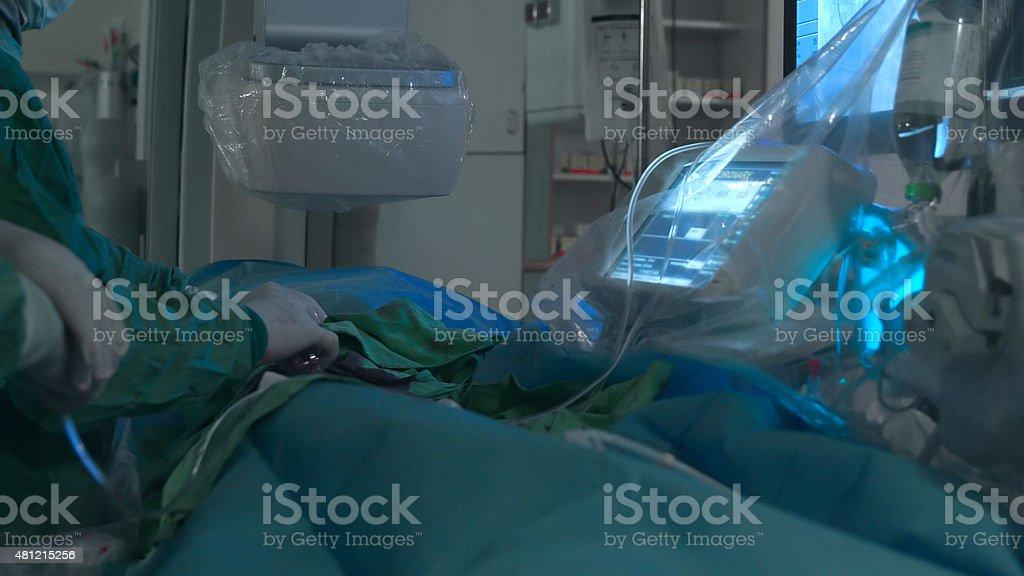 Vascular surgery. Balloon angioplasty stock photo