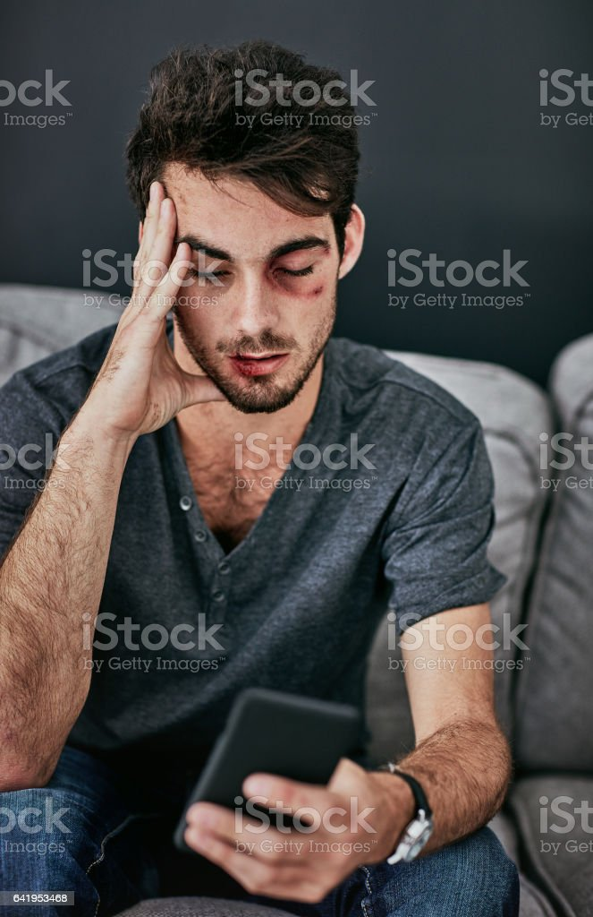 I've got THEE worst headache stock photo