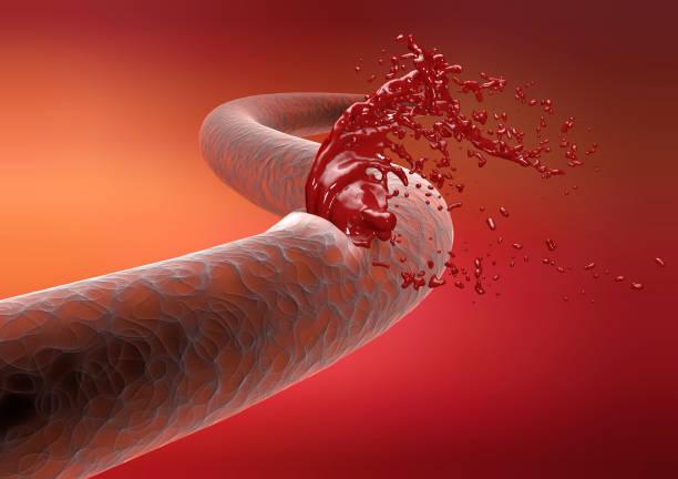 Vein, artery, rupture cut blood hemorrhage stock photo
