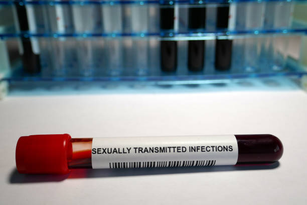 Venereal Diseases screening Sexually transmitted infection - laboratory analysis performed on a blood sample that is extracted from a vein in the arm using a hypodermic needle and vacutainer. treponema pallidum stock pictures, royalty-free photos & images