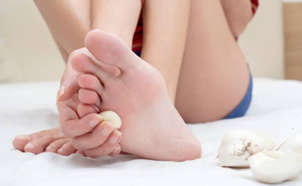 traitement naturel verruca - verrue pied photos et images de collection