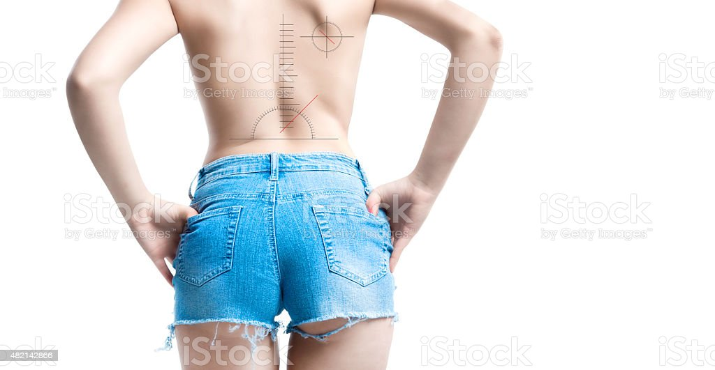 vertebral column disease stock photo