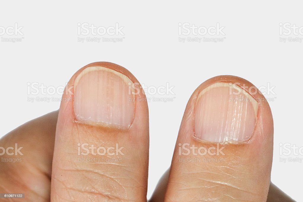 Vertical ridges on the fingernails stock photo