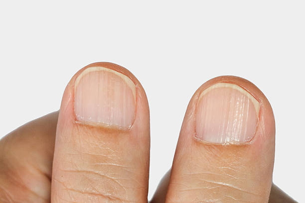 vertical ridges on the fingernails - eisenmangel was tun stock-fotos und bilder