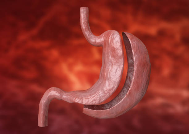 vertical sleeve gastrectomy. Bariatric surgery with reduction of the size of the stomach for weight loss and loss of body weight. 3D rendering stock photo