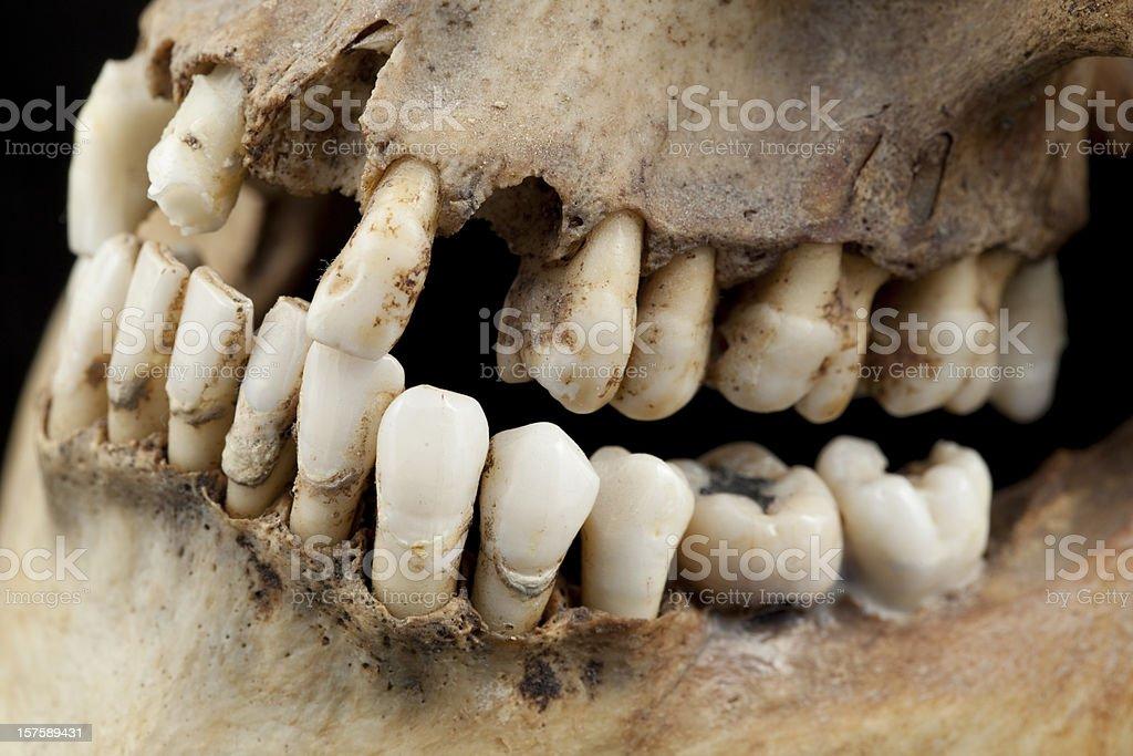 Very bad teeth indeed stock photo