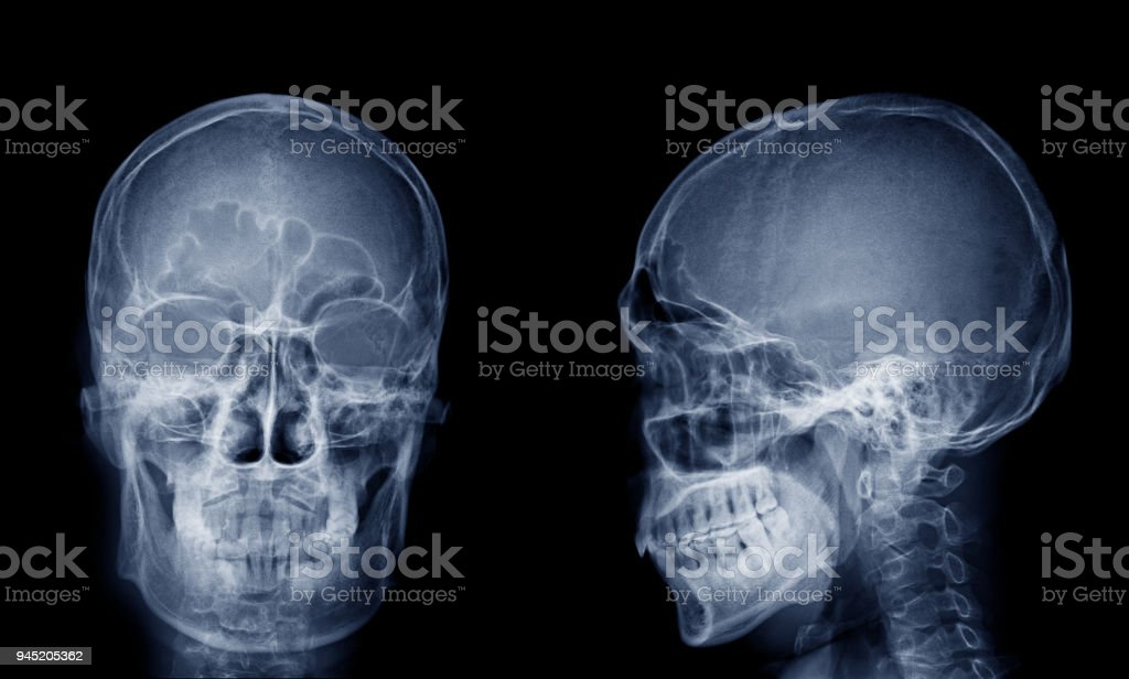 Very Good Quality Xray Image Of Normal Human Skull Front View ...