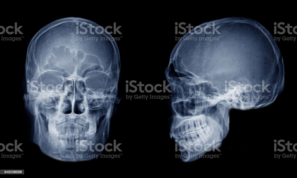 Very Good Quality Xray Image Of Normal Human Skull Front View