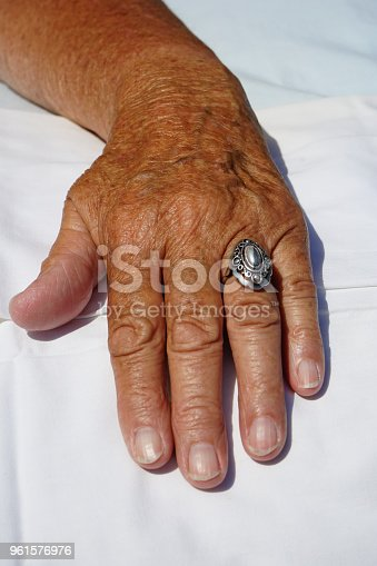 639895050istockphoto very old  hands 961576976