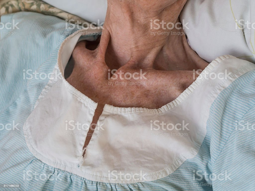 Very skinny old woman lying in a bed stock photo