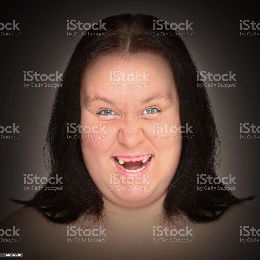 Frau hässliche Reiche Frauen