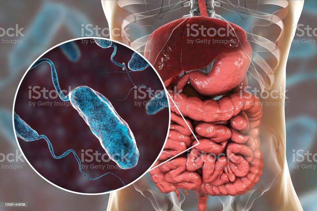 Bacterias de Vibrio cholerae en el intestino delgado - foto de stock