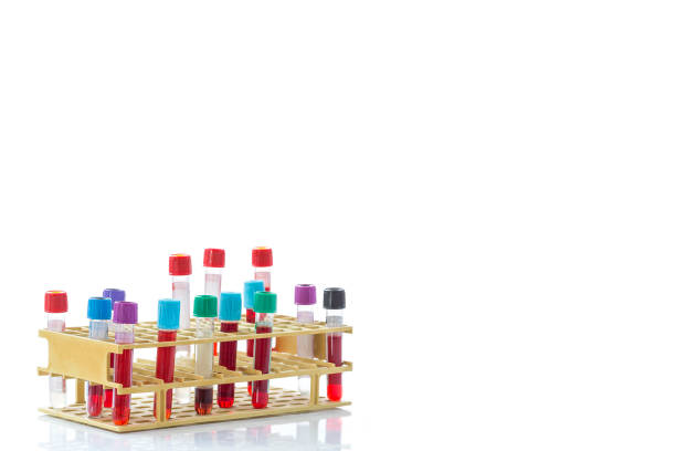 view from of a bic rack of blood sample test tubes on a white background copy text view from of a bic rack of blood sample test tubes on white background laboratoire stock pictures, royalty-free photos & images