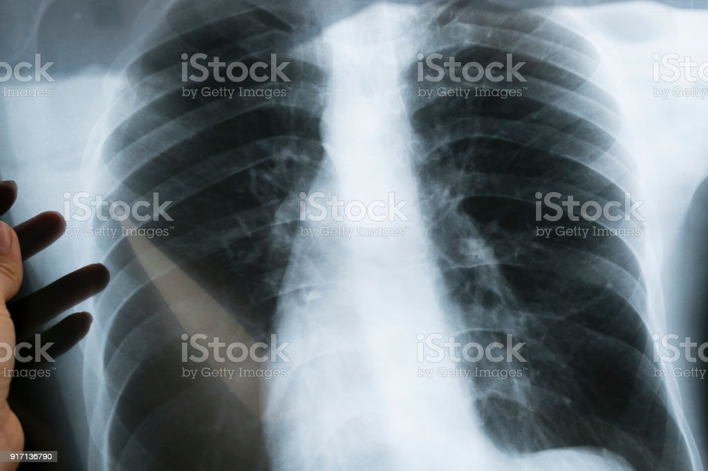 View of a child x-ray film, taken to examine the lungs stock photo