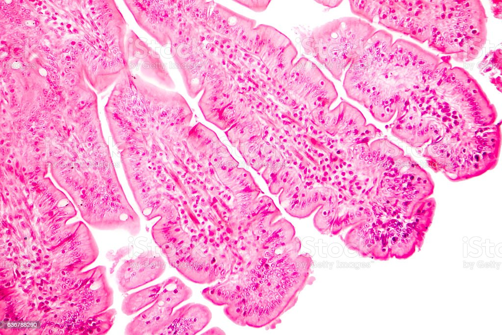 Villi of small intestine, light micrograph stock photo