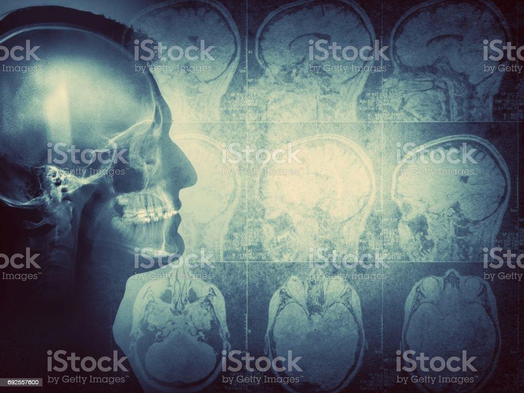 Vintage brain stock photo