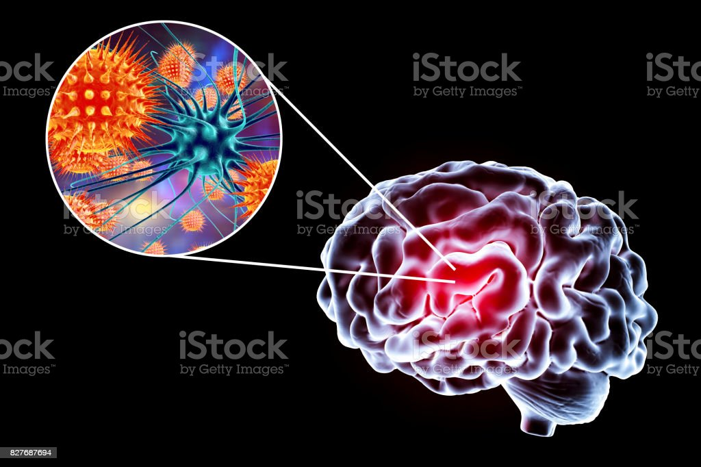 Viral encephalitis illustration stock photo