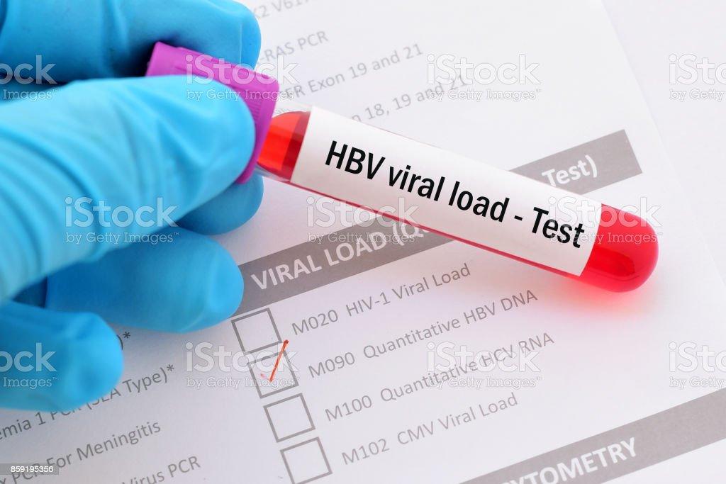 HBV viral load test stock photo