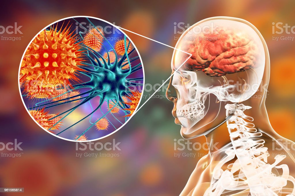 Viral meningitis and encephalitis, medical concept stock photo