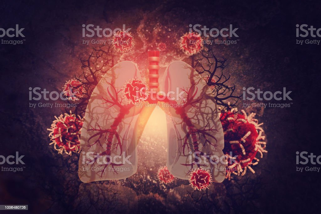 Virus and bacteria infected the Human lungs. lung disease stock photo