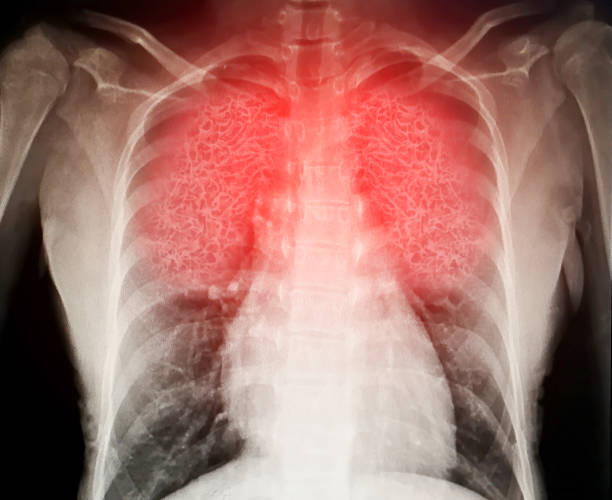 Virus destroys human lungs the lnflamed a radiograph stock photo
