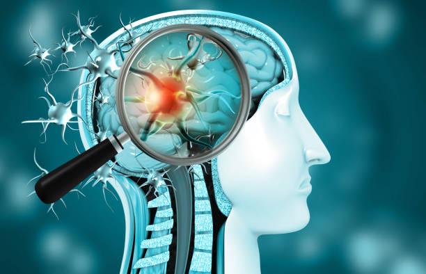 virusinfectie in de hersenen - covid icons stockfoto's en -beelden
