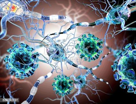 istock viruses attacking nerve cells, concept for Neurologic Diseases brain surgery. 538240191