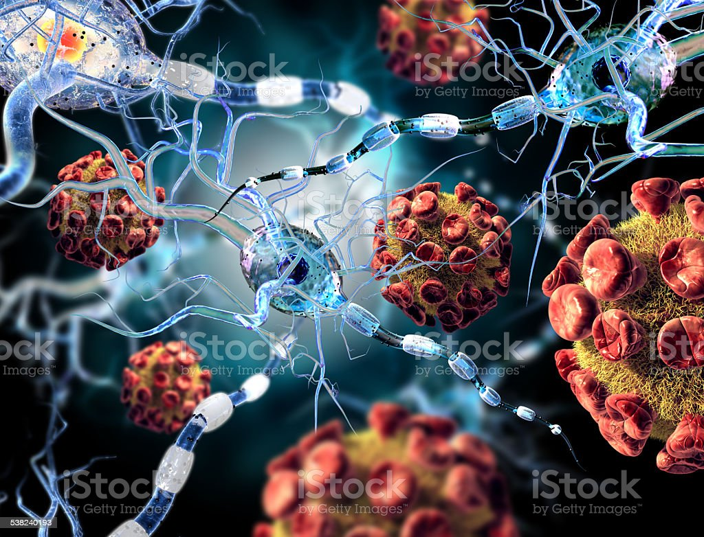 viruses attacking nerve cells, concept for Neurologic Diseases brain surgery. High quality 3d render of viruses attacking nerve cells, concept for Neurologic Diseases, tumors and brain surgery. 2015 Stock Photo