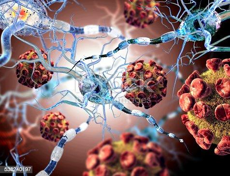 istock viruses attacking nerve cells, concept for Neurologic Diseases brain surgery. 538240197