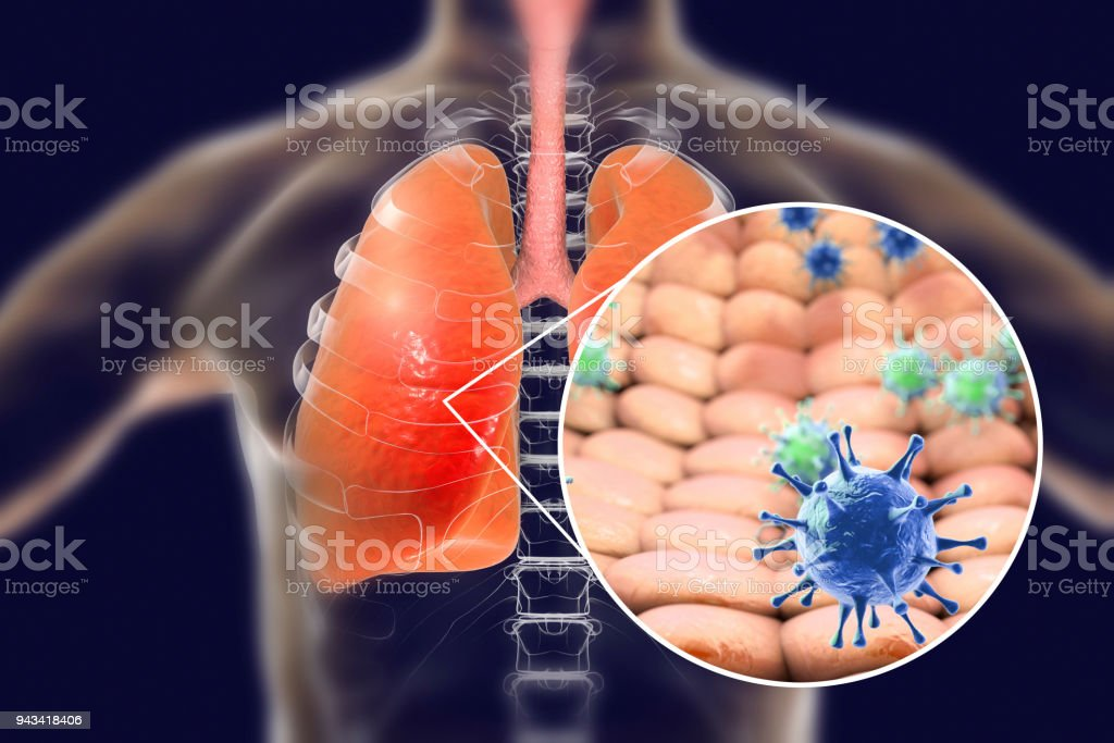 Viruses in human lungs stock photo