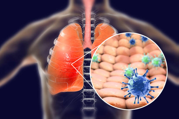 Viruses in human lungs Viruses in human lungs, 3D illustration. Conceptual image for viral pneumonia, flu, MERS-CoV, SARS, Adenoviruses and other respiratory viruses middle east respiratory syndrome stock pictures, royalty-free photos & images