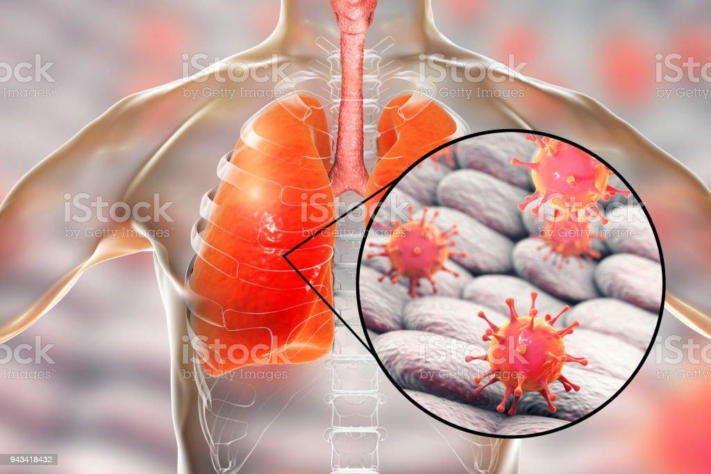 Fotografía de Virus En Los Pulmones y más banco de imágenes de ...