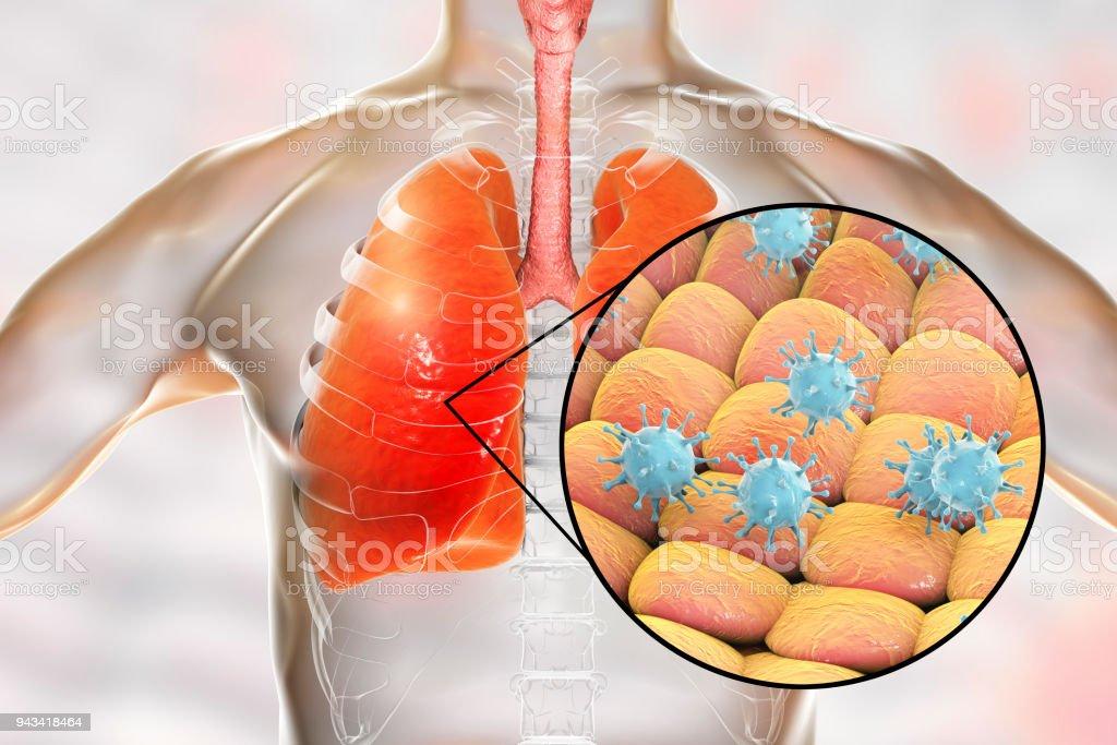 Viren in der menschlichen Lunge – Foto